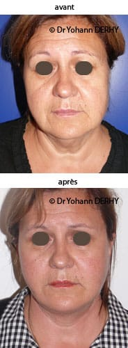photo lifting lipofilling
