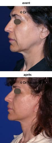 photo lifting visage et cou, botox, lift temporal