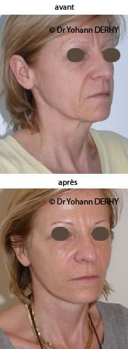 photo lifting visage et cou et lipofilling, botox