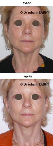 photo lifting cervico facial