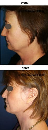 photo lifting cervico facial