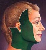 Décollement de la peau du lifting cervico-facial