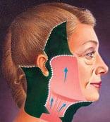 Lifting cervico-facial : remise en tension musculaire