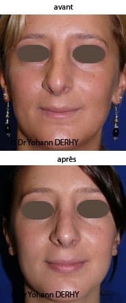 photo rhinoplastie secondaire