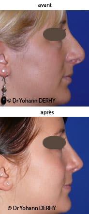 photo rhinoplastie secondaire