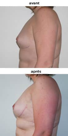 photo lipofilling mammaire pour asymétrie