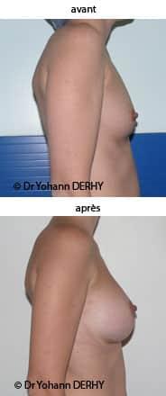 Quels sont les risques des prothses mammaires