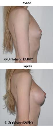 photo prothese mammaire pour augmentation mammaire