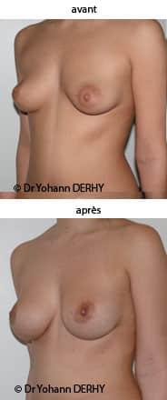 photo augmentation mammaire pour asymétrie
