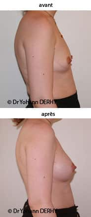 photo augmentation mammaire