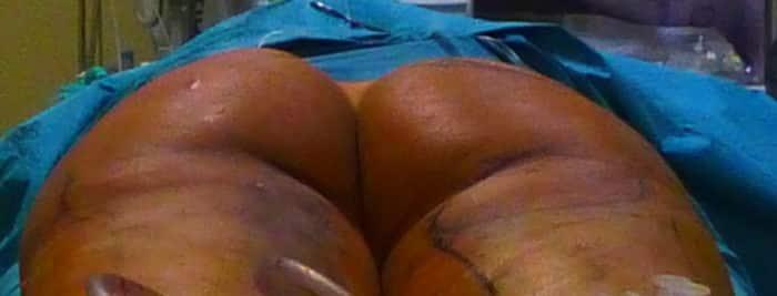 lipofilling des fesses : resultat