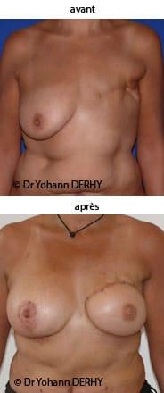 reconstruction mammaire par grand dorsal
