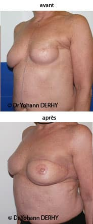 reconstruction mammaire par lambeau de grand dorsal