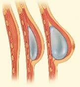 reconstruction mammaire par prothèse