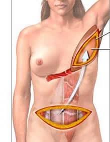 reconstruction mammaire par TRAM