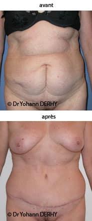 photo abdominoplastie
