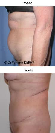 photo abdominoplastie