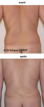 photo abdominoplastie homme