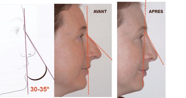 rhinoplastie réussie : angle naso frontal