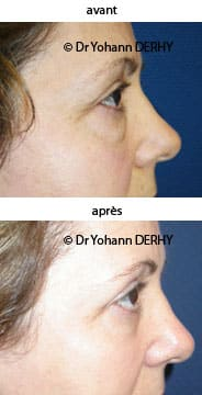 photo blepharoplastie sans cicatrice