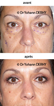 photo blepharoplastie