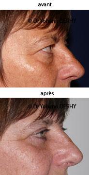 photo chirurgie paupiere esthetique