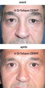 photo blepharoplastie secondaire