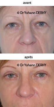 photo blepharoplastie, photo lift temporal