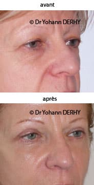 photo blepharoplastie, photo lift temporal