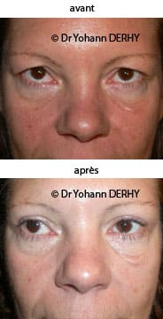 photo blepharoplastie superieure