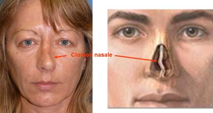 rhinoseptoplastie pour déviation nasale