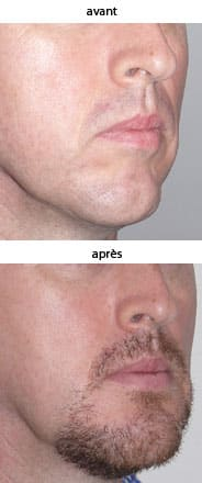 photo genioplastie prothese