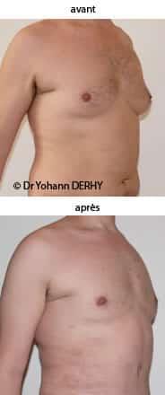 photo gynecomastie