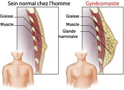 anatomie de la gynécomastie