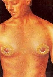 mastectomie pour gynécomastie