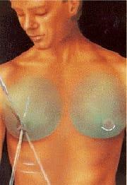 liposuccion gynécomastie