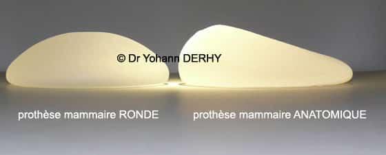 prothèse mammaire ronde et anatomique