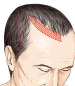 lambeau de cheveu