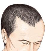 lambeau-cheveux-technique-2