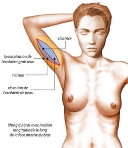 cicatrice classique du lifting de bras