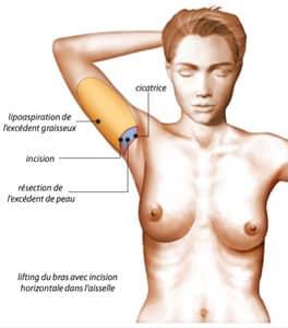 cicatrice courte du lifting de bras