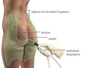 Technique chirurgicale de liposuccion