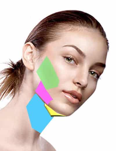 liposuccion des joues , liposuccion du visage