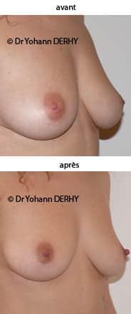 photos mamelons ombiliques