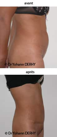 photo mini abdominoplastie