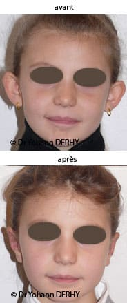 photos otoplastie enfant