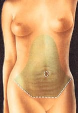 liposuccion avant abdominoplastie