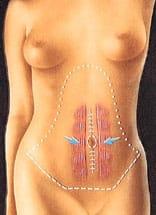 abdominoplastie: diastasis