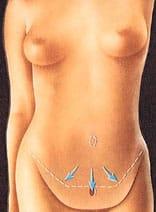 abdominoplastie : dermolipectomie