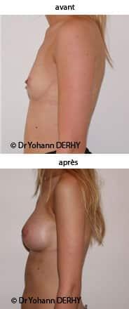 photo augmentation mammaire par prothèse et asymétrie